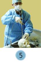5. Titthålskirurgi